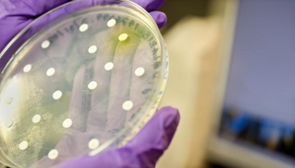 התמודדות חיידקים עם שינויי טמפרטורה: תפקוד חלבון עקת הקור CspC בחיידקי Escherichia coli